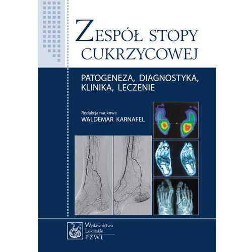 Zespół stopy cukrzycowej. Patogeneza, diagnostyka, klinika, leczenie (150 str.)