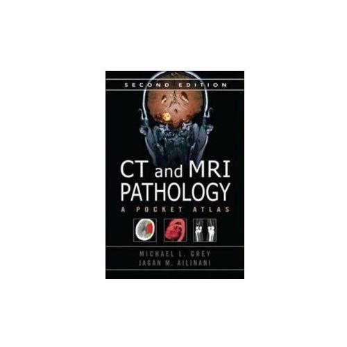 CT & MRI Pathology: a Pocket Atlas