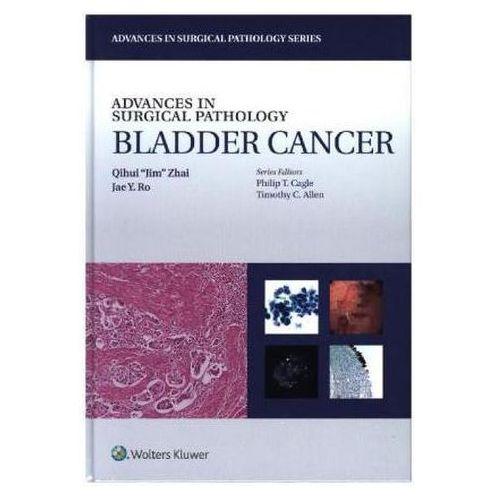 Advances in Surgical Pathology: Bladder Cancer