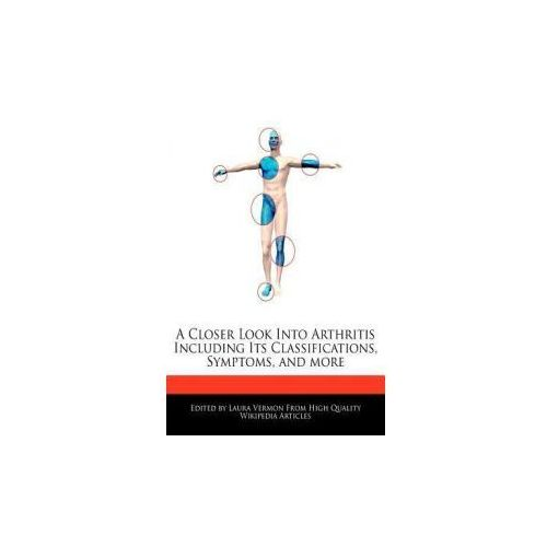 A Closer Look Into Arthritis Including Its Classifications, Symptoms, and More (9781277384789)