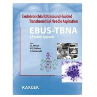 Endobronchial Ultrasound-Guided Transbronchial Needle Aspiration (EBUS-TBNA): A Practical Approach Monaco