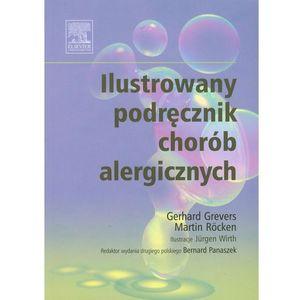 Ilustrowany podręcznik chorób alergicznych (248 str.)