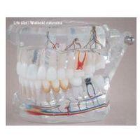 Model stomatologiczny zgryz idealny z przypadkami klinicznymi, przeźroczysty, wielkość naturalna marki Falcon