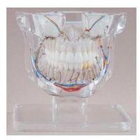 Model chirurgiczny z przypadkami klinicznymi przeźroczysty, wielkość naturalna